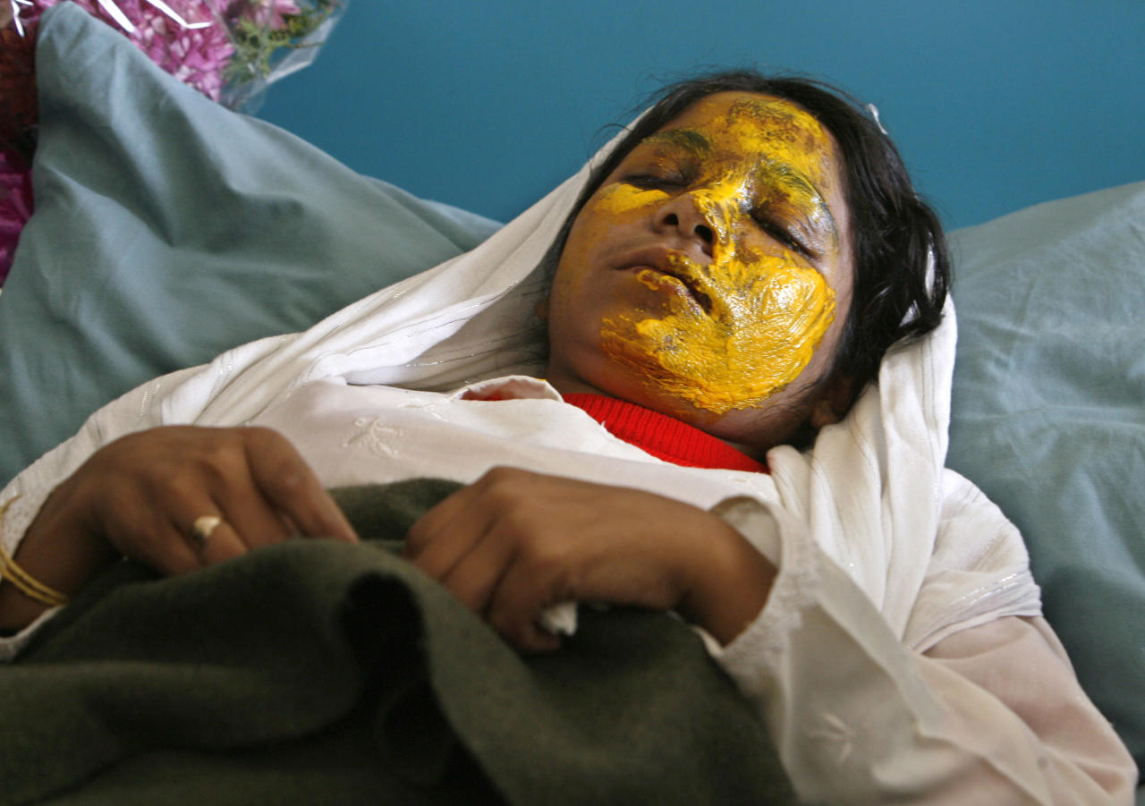 Shamsia, 17, victim of an acid attack by the Taliban, lies on a bed at a hospital in Kabul November 15, 2008. The Taliban, which does not permit women to attend school, attacked Shamsia two days ago as she was on her way to class with 15 other schoolgirls, according to police.     REUTERS/Omar Sobhani (AFGHANISTAN)