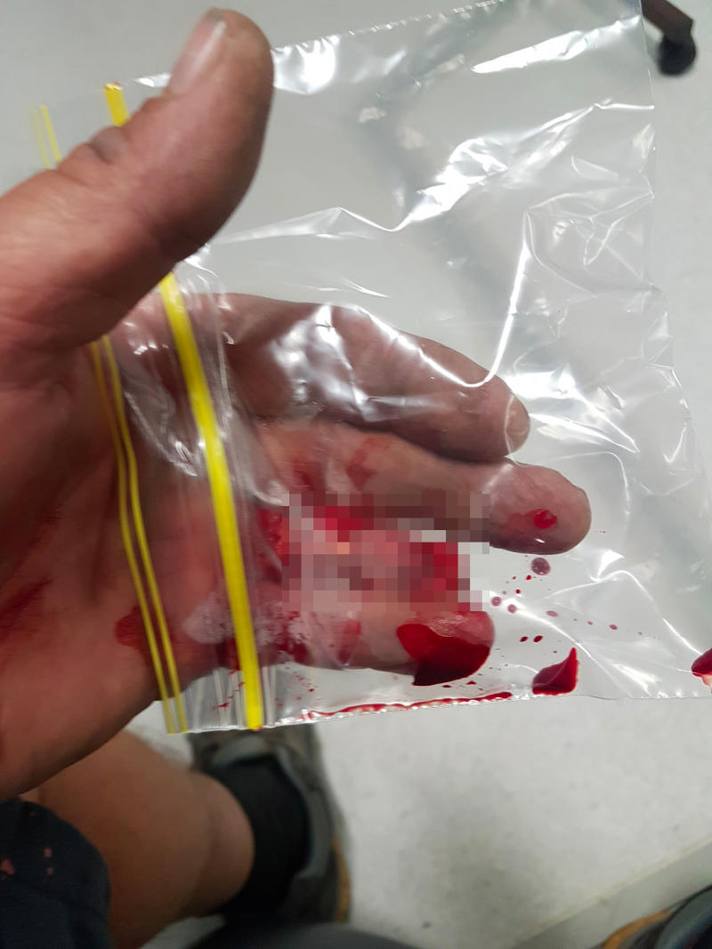 Dean Outlaw said doctors were attempting to reattach his finger. Source: Supplied