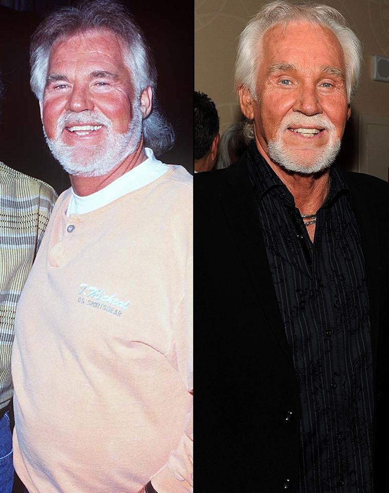 "<p class=""MsoNormal"">  </p>Kenny Rogers shocked fans when he went under the knife in 2005, and emerged with a face that looked quite different from the one that made him famous. After successfully having liposuction in 1989 to slim down a bit, he probably should have known when to fold 'em, but instead went back in for another cosmetic procedure (which looks like it involved a serious eye lift) years later, after marrying his fifth wife, Wanda Miller, who's nearly 30 years his junior. Rogers ended up with a lifted look that he regrets. ""I kind of wish I hadn't done it,"" he said a couple of years after his facial surgery. ""Looking back at some pictures of myself, my eyes were a lot warmer than they are now, and I miss that."""