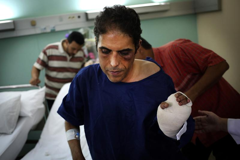 Khaled Dawoud, spokesman for the liberal al-Dustour party, recuperates at a hospital in Cairo, Egypt, Saturday, Oct. 5, 2013, a day after he was stabbed when he drove past a march organized by ousted president Mohamed Morsi supporters on a street near Tahrir Square. Even though the Muslim Brotherhood, from which Morsi hails, officially condemned the attack, the incident underlines the increasingly volatile political tension which has largely been played out in violent street clashes but now appears to be threatening to turn into vendetta attacks.(AP Photo/Khalil Hamra)