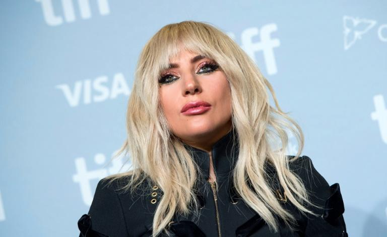 Lady Gaga withdraws from Rock in Rio, hospitalized with 'severe pain'