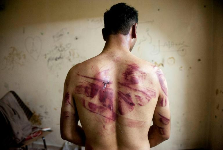 With widespread reports of torture in Syria, a former doctor at a military hospital in Homs could face trial in Germany next year