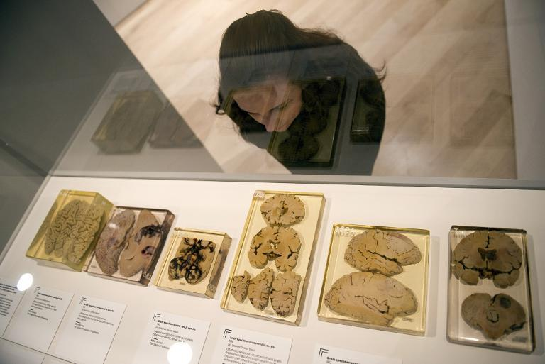 A woman looks at a selection of brain specimens preserved in acrylic in London on March 27, 2012