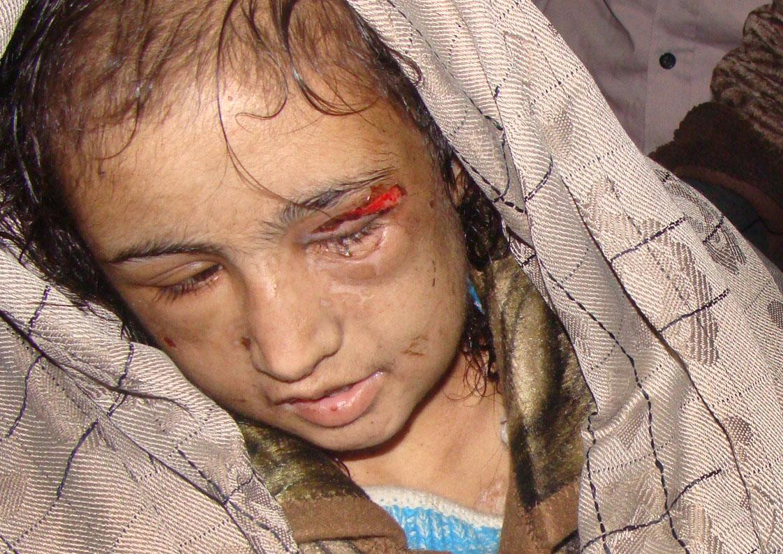 In this Wednesday, Dec. 28, 2011 file photo, 15-year-old Sahar Gul, is carried into hospital in Baghlan north of Kabul, Afghanistan. According to officials in northeastern Baghlan province, Gul's in-laws kept her in a basement for six months, ripped her fingernails out, tortured her with hot irons and broke her fingers _ all in an attempt to force her into prostitution. Police freed her last week after her uncle called authorities. Horrific images of Sahar, bruised and bloodied, captured on video, transfixed Afghanistan and set off a storm of condemnation. President Hamid Karzai set up a commission to investigate, and his health minister visited her bedside at a Kabul hospital. The in-laws have been arrested _ they deny abusing her _ and a warrant has been issued for her husband, who serves in the Afghan army. (AP Photo/Jawed Basharat, File)