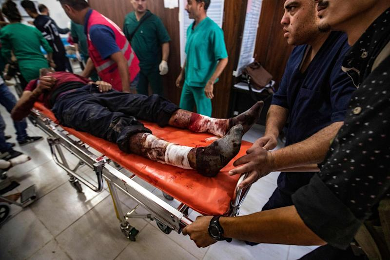 People who were injured during the ongoing Turkish offensive against Kurdish-controlled areas of northeastern Syria receive treatment at a hospital in Tal Tamr, near the Syrian Kurdish town of Ras al-Ain: Photo by DELIL SOULEIMAN/AFP via Getty Images
