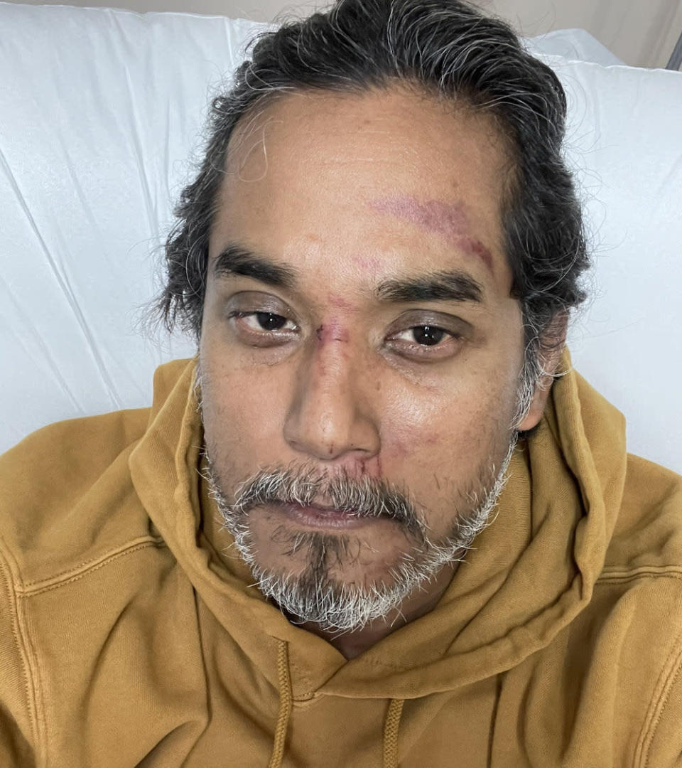 Science, Technology and Innovation Minister Khairy Jamaluddin shared pictures of his cuts and bruises after falling into a pothole and a ditch while cycling around Kampung Seri Cheeding in Banting December 27, 2020. — Picture via Twitter/Khairy Jamaludd