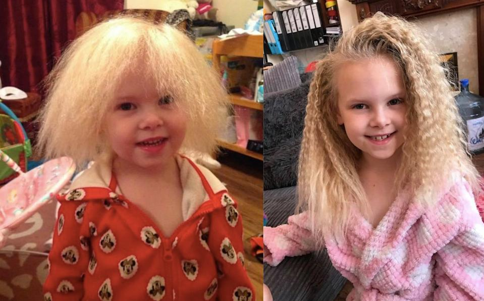 A little girl who suffers from uncombable hair syndrome is finally able to have her hair tamed after nine years. (Caters)