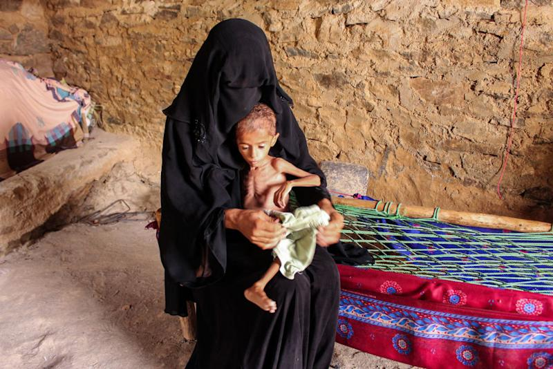 Moaz Ali Mohammed, a two-year-old Yemeni boy from an impoverished family in the Bani Amer region, who suffers from acute malnutrition and weighing eight kilograms, sits on his mother's lap at their house in the Aslam district in the northern Hajjah province on July 28, 2019. | ESSA AHMED—AFP/Getty Images