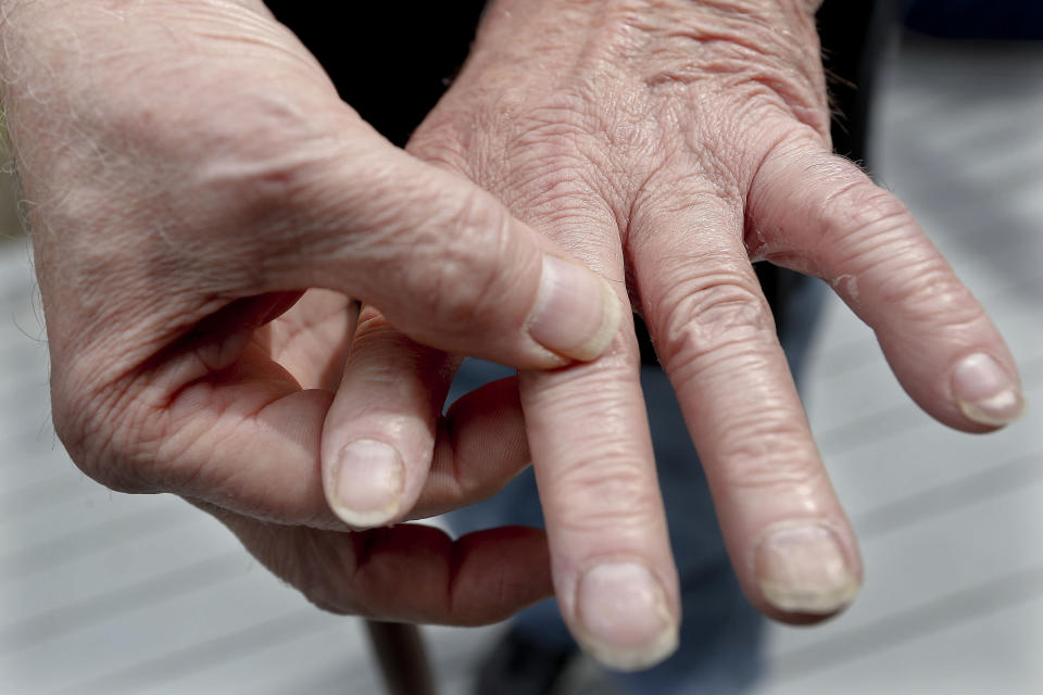 In this April 8, 2019, photo Chuck Pope, shows the condition of his hands while on the deck at his home in Derry, Pa. Pope had been battling his rheumatoid arthritis with an injected drug that his insurance covered while he was still working. It relieves pain and stops irreversible joint damage but retails for over $5,000 a month. Now his Medicare plan doesn't cover that drug, and Pope says his condition is deteriorating without it. Meanwhile, sales of approved, cheaper versions have been blocked. (AP Photo/Keith Srakocic)