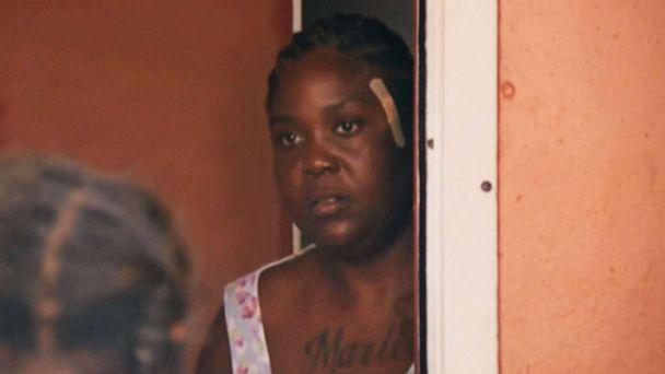 PHOTO: Shakena Jefferson, victim of drive-by shooting on Feb. 11, 2020, in Miami, is seen at her home after being discharged from a hospital. (WPLG)