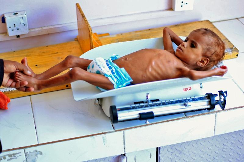 A Yemeni child suffering from malnutrition is weighed at a treatment centre in the capital Sanaa on October 6, 2018 (AFP Photo/MOHAMMED HUWAIS)