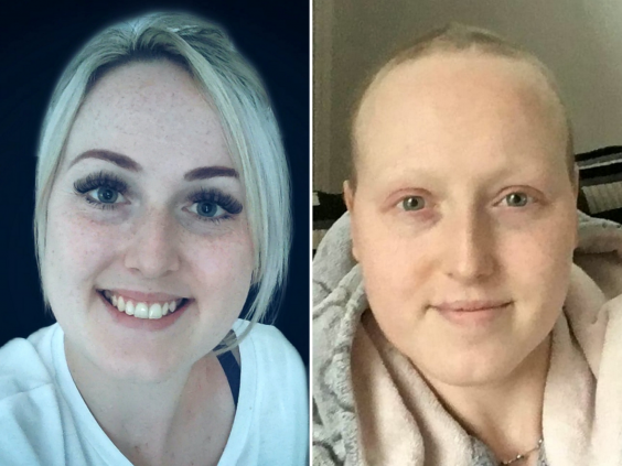 Sarah Boyle before she was wrongly diagnosed with breast cancer (left) and after treatment (right). (Sarah Boyle/SWNS)