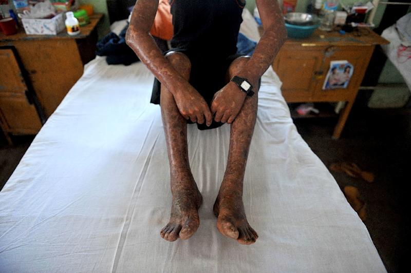 Although it has been eradicated almost globally through treatments developed in the 1980s, leprosy still affects 200,000 people a year, particularly in India, Indonesia and Brazil (AFP Photo/Ye Aung Thu)