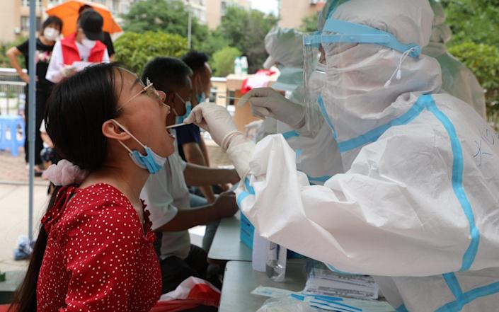 A local resident undergoes a test in Dalian - China News Service