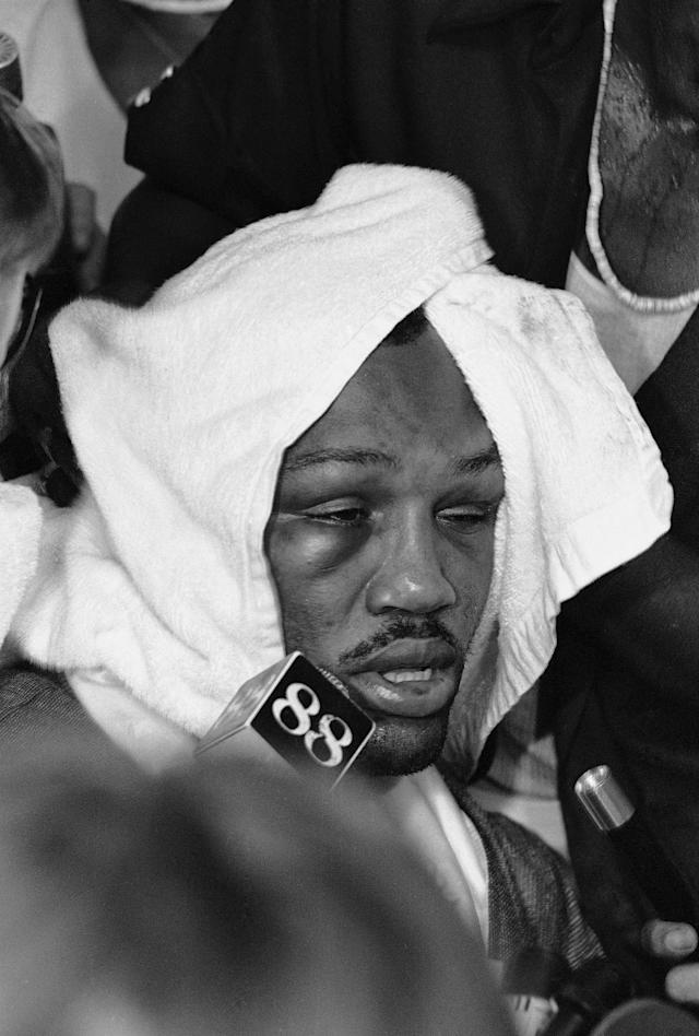 In this Oct. 1, 1975 file photo, a swollen right eye is apparent on Joe Frazier's face as he is almost covered over by a towel in Manila, Philippines after losing by TKO in the 14th round to heavyweight champion Muhammad Ali at the Coliseum. Frazier, the former heavyweight champion who handed Muhammad Ali his first defeat yet had to live forever in his shadow, died Monday Nov. 7, 2011, after a brief fight with liver cancer. He was 67. (AP Photo/MC/KM, File)