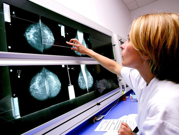A radiologist examines mammograms on a lightbox: Rex/Shutterstock