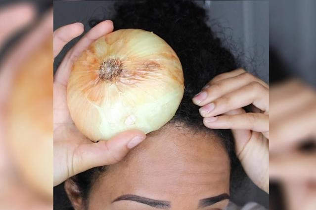 One beauty blogger says that onions and garlic help grow hair. (Photo: Instagram/amberjanielle)