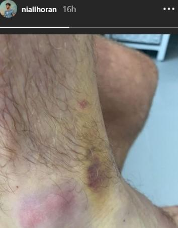 Niall Horan showed off his colourful bruise on social media. (Niall Horan/Instagram)
