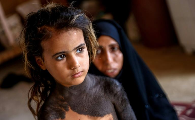 Haura, a four-year-old Iraqi girl with a rare congenital skin condition that covers much of her upper body in black marks and hair, stands in front of her mother in the family home in Wahed Haziran, Diwaniya province, on April 17, 2018. Photo by Haidar Hamdani