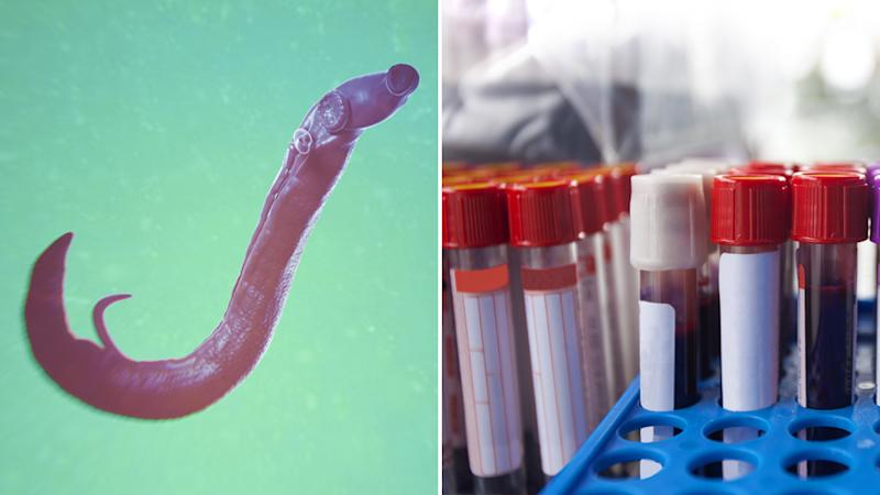 Parasitic worm crawled up British tourist's penis and laid eggs inside him