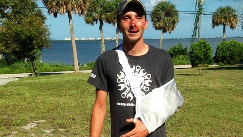 Cross-Country Bike Ride for Hearing Loss Derailed After Truck Hits Cyclist