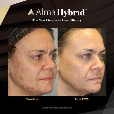 Laser skin resurfacing with Alma Hybrid™ using the first hybrid 10,600 nm (CO2) with 1570 nm laser to address the most common aesthetic concerns.