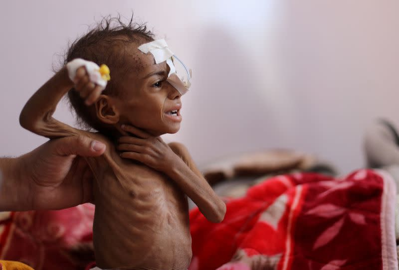 FILE PHOTO: Child malnutrition at record highs in parts of Yemen -U.N. survey