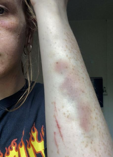 Cait Smith suffered cuts and bruises to her arm and face. (SWNS)