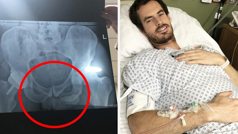 Andy Murray has opened up about a picture he posted on Instagram which fans believe shows a little more than he might have cared to share. Pictures: Instagram/andymurray