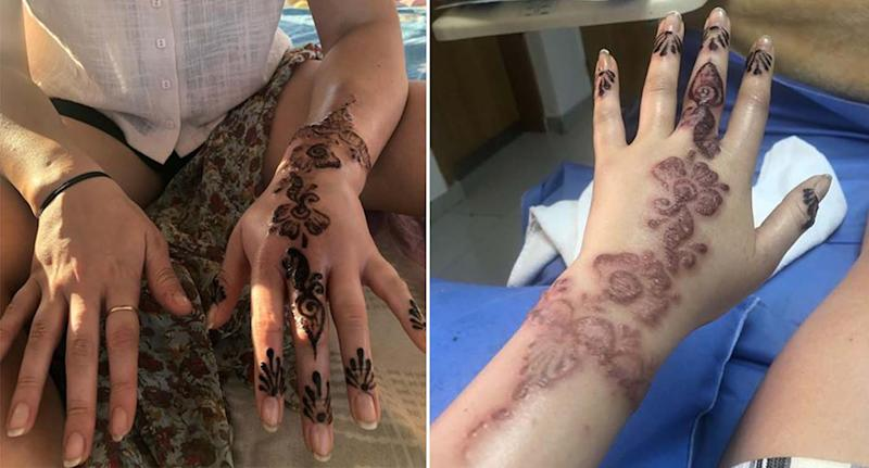 A split image showing Brooke Crannaford's henna tattoo and the infection that broke out on her hand and wrist.