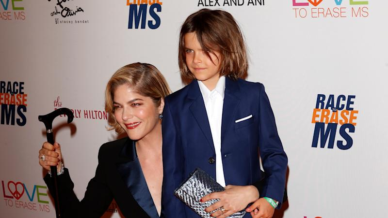 Actress Selma Blair debuts bald head after undergoing MS treatment