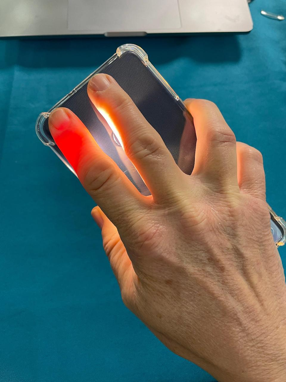 Jennifer Jolly takes her blood pressure with a smartphone camera using the OptiBP app. The app, which is released on Android in beta form now, uses algorithms to figure out pulse and blood pressure.