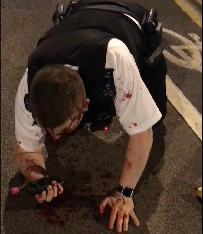 Pc Outten collapses after the attack (PA)