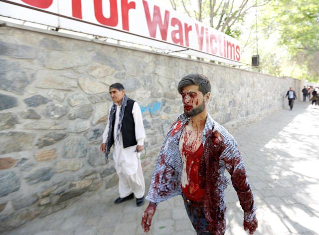 <p>An injured man arrives at a hospital after a blast in Kabul, Afghanistan May 31, 2017. (Mohammad Ismail/Reuters) </p>