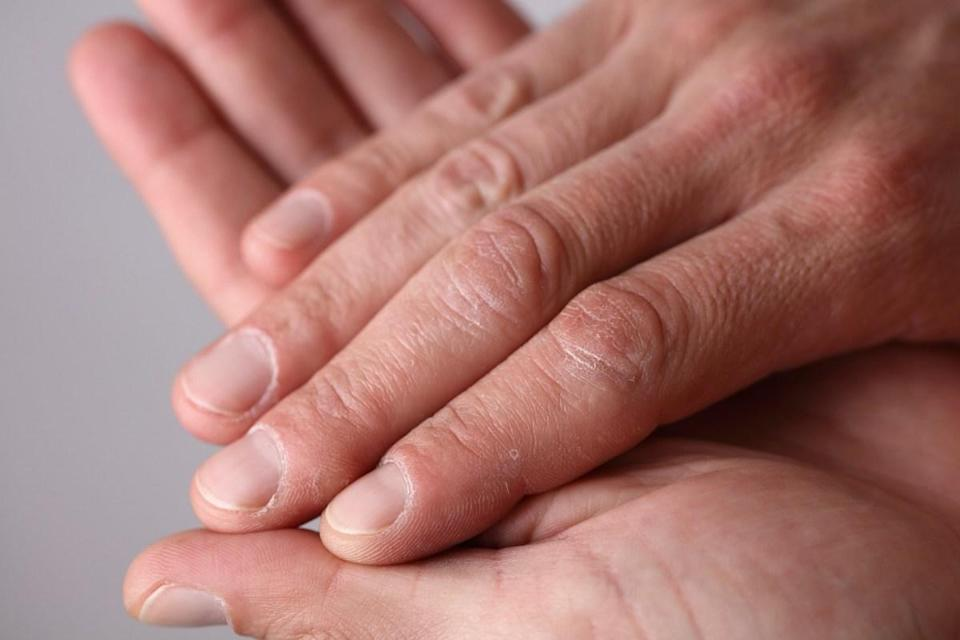 Your fingers do countless important things throughout the day, from opening jars to opening doors. But don't chalk up those feats of strength to your fingers. Any movement that happens in your fingers is due to tendons and bones, with a lot of help from the muscles in the palms of your hands and at the base of each individual digit.