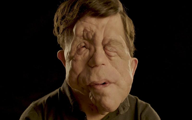Award-winning campaigner, actor and presenter Adam Pearson, who has neurofibromatosis  - Changing Faces/Changing Faces