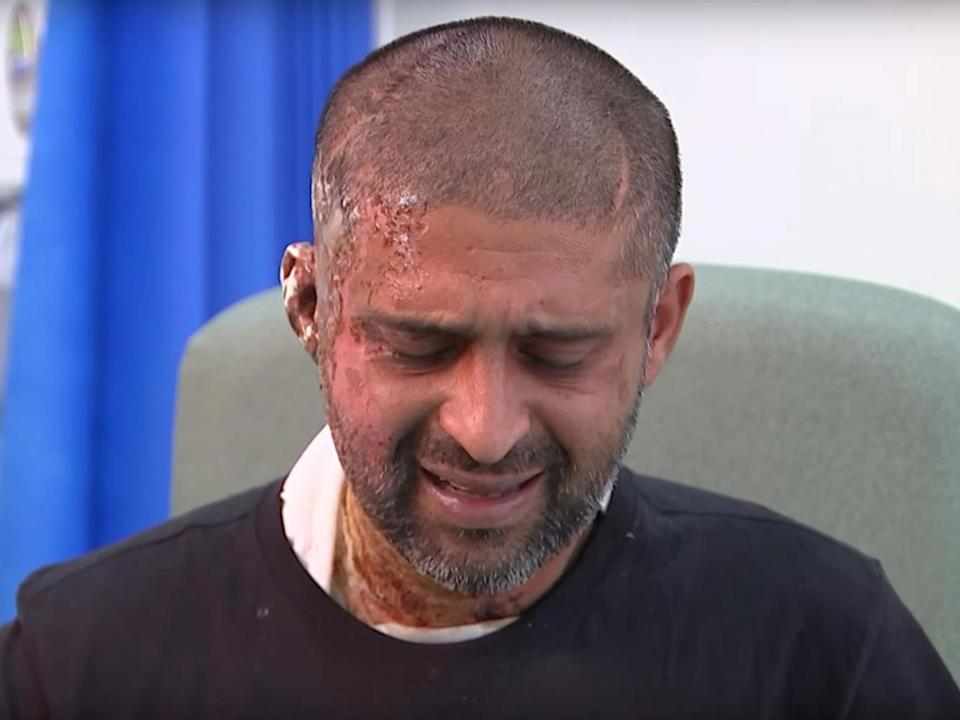 Jameel Muhktar, 37, speaking to Channel 4 News in hospital following an acid attack on 21 June (Channel 4 News/YouTube)