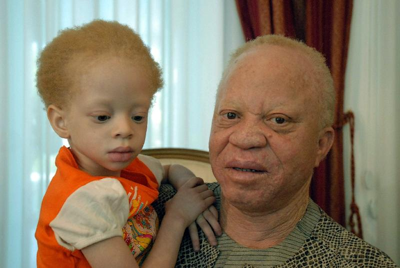 One of Mali's leading musicians, Salif Keita, seen here with his daugher Nanty, is a campaigner against anti-albino prejudice and crime