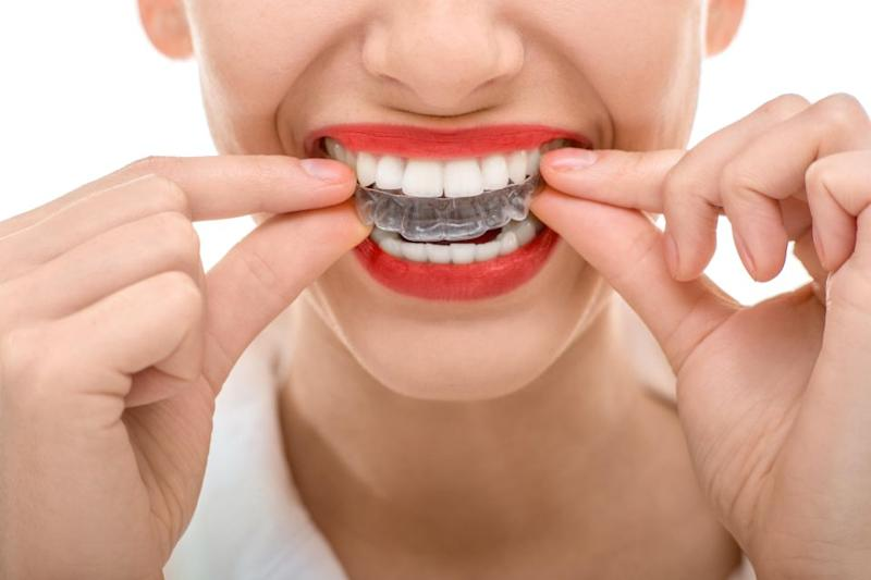 It turns out you should be wearing your retainer for life. Photo: Getty Images