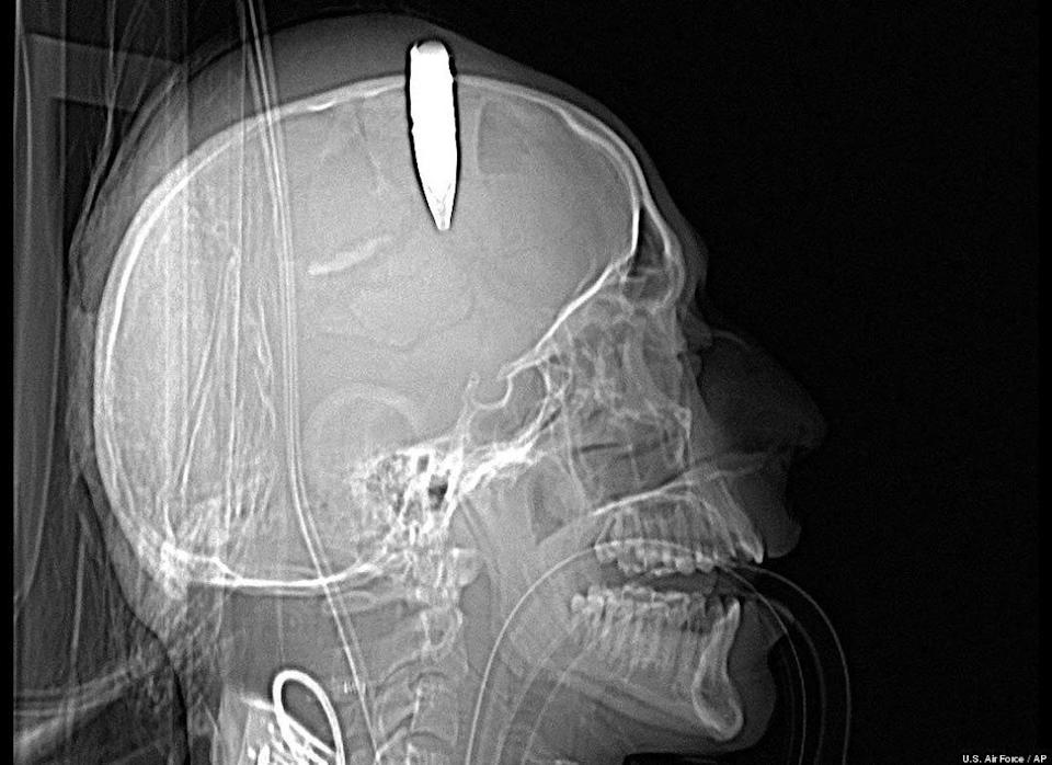 A CT scan shows a 14.5 millimeter live round of ammunition lodged in the skull of an Afghan soldier. A U.S. military doctor successfully removed the unexploded round -- more than 2 inches long -- at the Bagram Air Field hospital in Afghanistan last month.