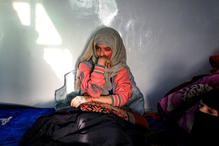 Married at the age of 12, rejected at 16, and then disfigured in an acid attack, Sheryan's fate is a shocking illustration of abuse in a society beset by war and poverty
