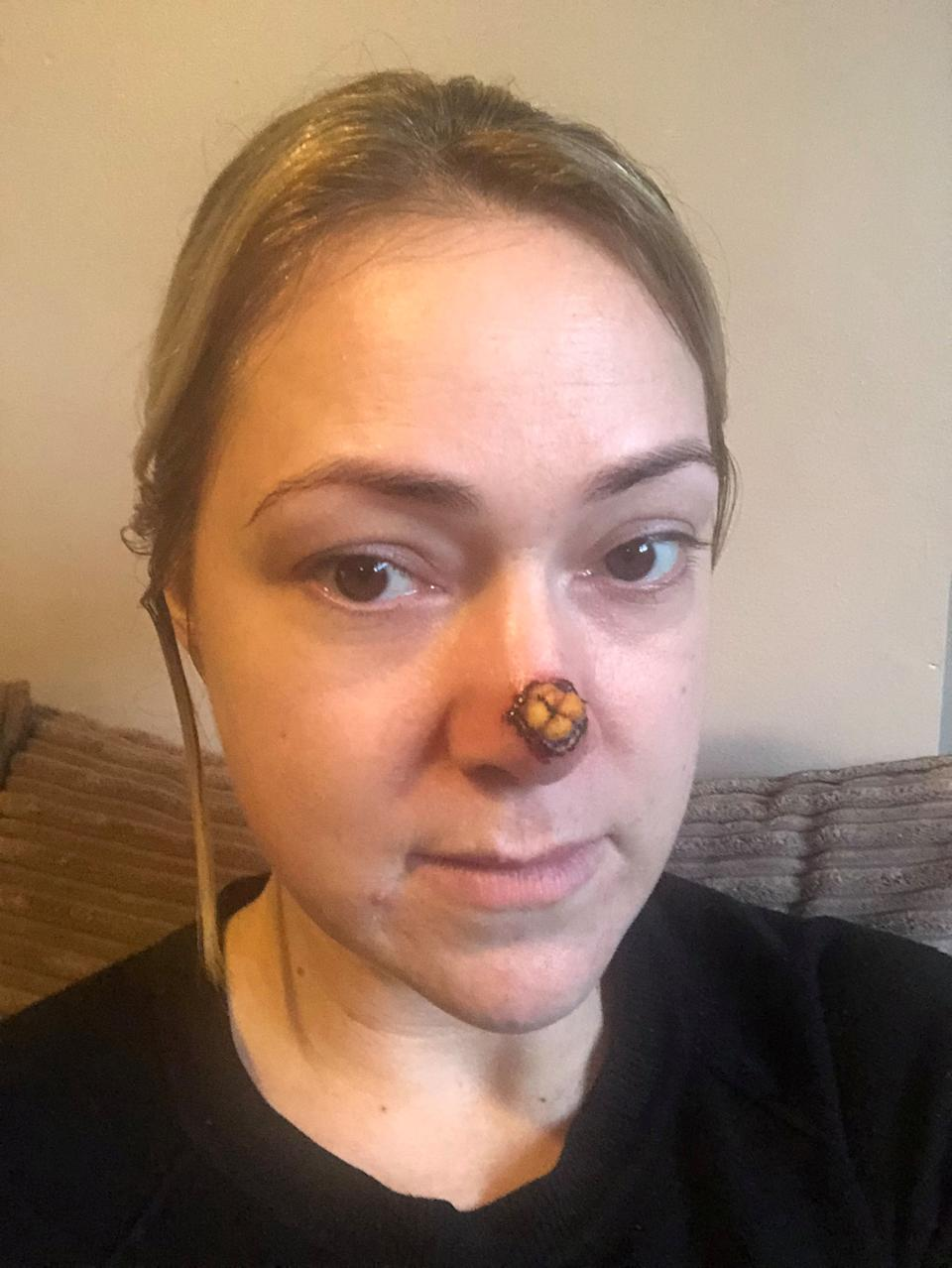 The mum was told if she didn't receive treatment she would have lost her nose within 10 years [Photo: SWNS]