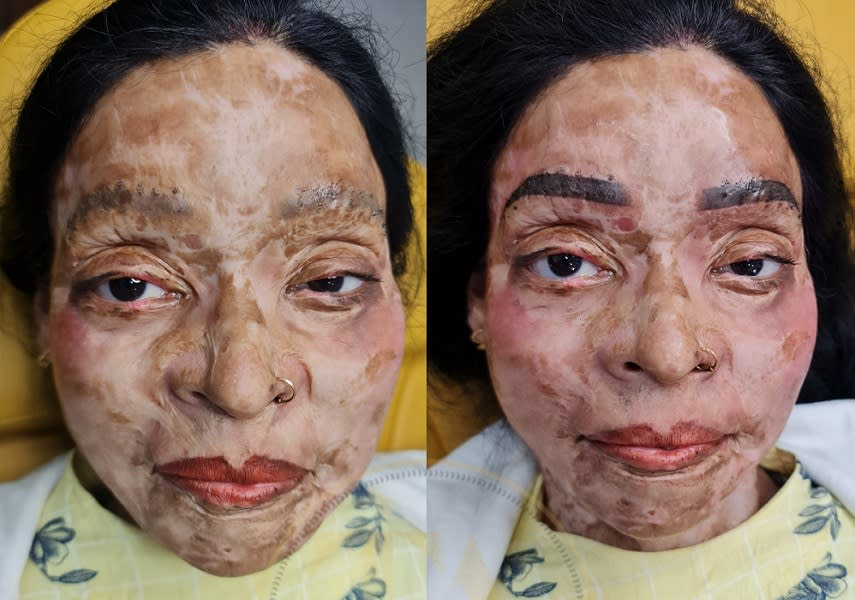 Dr Shikha offers free of cost PMU treatments to acid attack survivors by giving them Permanent Brows, Permanent Lips, Permanent Eyeliner and even Scalp Micropigmentation treatments for free