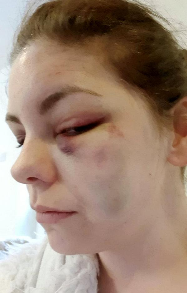 Nicola Frost finally approached police after Wharton beat, kicked and threatened her with a knife during a three-hour ordeal (SWNS)