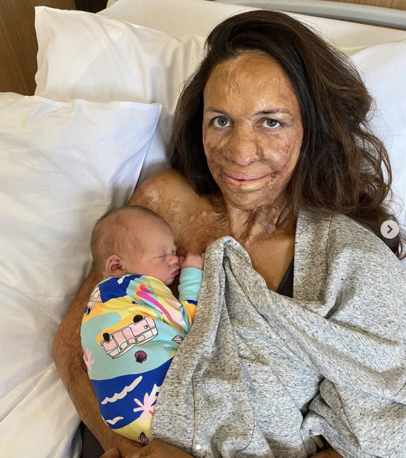 Turia Pitt and her second son