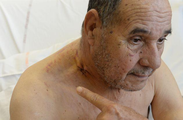 Amar Kariouh, 78, on Wednesday showed the bullet hole to his neck as he recuperates at a hospital in France after he was wounded on Oct. 28 in an attack at a mosque.