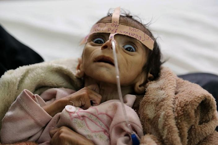 <p>MAR. 22, 2016 — Udai Faisal, an infant who is suffering from acute malnutrition, is hospitalized at Al-Sabeen Hospital in Sanaa, Yemen. Udai died on March 24. Hunger has been the most horrific consequence of Yemen's conflict and has spiraled since Saudi Arabia and its allies, backed by the U.S., launched a campaign of airstrikes and a naval blockade a year ago. (Maad al-Zikry/AP) </p>