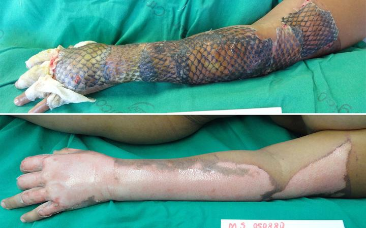 Image result for fish skin treating wounds burnt