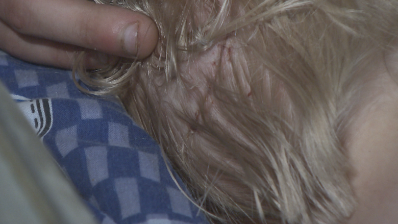 Toddler left with nearly 150 stitches after coyote attack in Burnaby