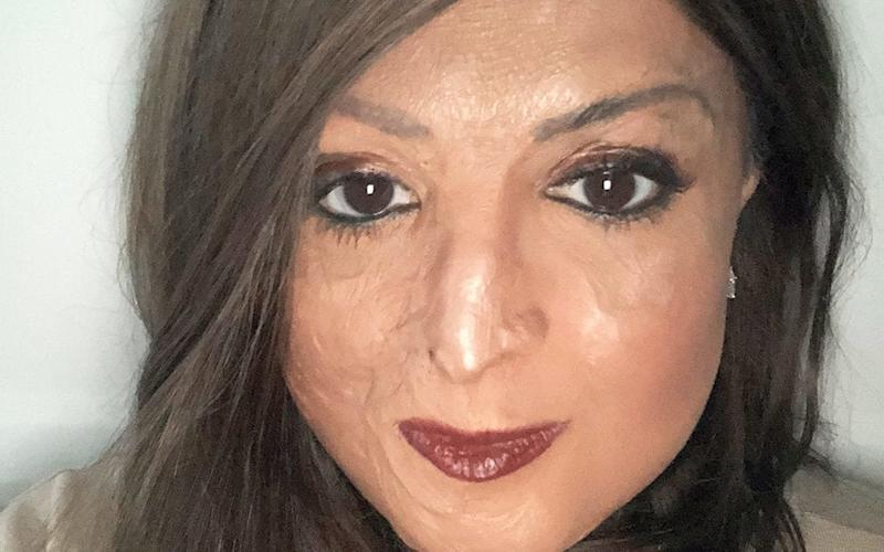 Tulsi, 39, was 10 years old when she was in a plane crash, in which she sustained second-andthird-degree burns to 45 per cent of her face and body
